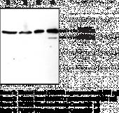 PCSK9 Polyclonal Antibody