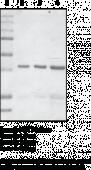 PCAF Histone Acetyl<wbr/>transferase