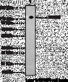 HDAC6 Polyclonal Antibody