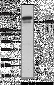 DNA Methyl<wbr>transferase 1 Monoclonal Antibody (Clone 60B1220.1)