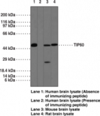 TIP60 Polyclonal Antibody