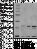 JMJD2D Strep-<wbr/>tagged (human recombinant)