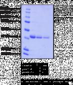Catechol O-<wbr/>Methyl<wbr>transferase (human recombinant)