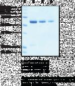 SIRT5 (human, recombinant)