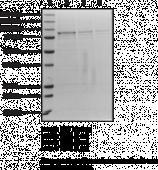 TBK1 (human recombinant)