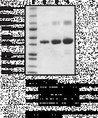 Prostaglandin D Synthase (lipocalin-<wbr/>type; human recombinant)
