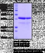Renin (human recombinant)