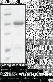 15-<wbr/>hydroxy Prostaglandin Dehydrogenase (human recombinant)