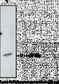Prostaglandin D Synthase (hemato<wbr/>poietic-<wbr/>type) Polyclonal Antibody