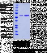 PPARδ (human recombinant)