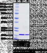 Fatty Acid Desaturase 2 (human recombinant)