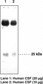 Prostaglandin D Synthase (lipocalin-<wbr/>type) Polyclonal Antibody