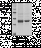 Prorenin (human recombinant)