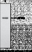 Endothelial Lipase Polyclonal Antibody