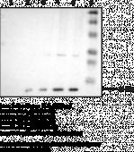 sPLA<sub>2</sub> (human Type IIA) Polyclonal Antiserum