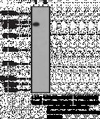LSD1 Polyclonal Antibody (aa 100-<wbr/>150)