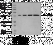 JMJD2D (human recombinant)
