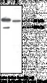 SOAT-<wbr/>1/ACAT-<wbr/>1 Polyclonal Antibody