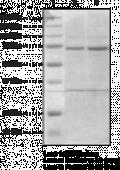 12-<wbr/>Lipoxygenase (platelet-<wbr/>type, mouse recombinant)