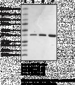 SMN tudor domain (human recombinant)