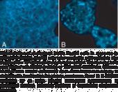 Cholesterol Cell-<wbr/>Based Detection Assay Kit