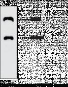 ANGPTL3 (human) Monoclonal Antibody (Clone Kairos-<wbr/>37)