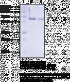 Cystathionine γ-<wbr/>Lyase (human, recombinant)