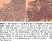 Steatosis Colorimetric Assay Kit