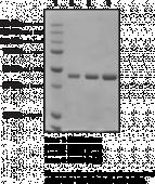 Nicotinamide N-<wbr/>Methyl<wbr>transferase (human recombinant)