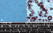 Adipogenesis Assay Kit