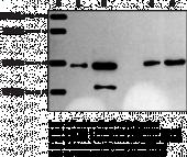 Sphingosine Kinase 1 Polyclonal Antibody