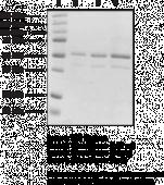 Glucokinase (human liver recombinant)