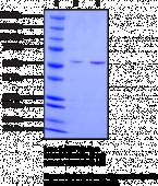 Vimentin (human recombinant)