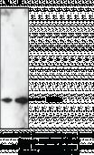 Prostaglandin D Synthase (hemato<wbr/>poietic-<wbr/>type; human) Polyclonal Antibody