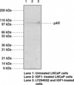 Androgen Receptor (Phospho-<wbr/>Ser<sup>210,213</sup>) Monoclonal Antibody (Clone 156C135.2)