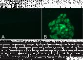 JARID1B/PLU1 (C-<wbr/>Term) Polyclonal Antibody