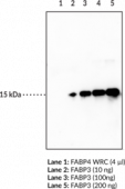 FABP3 Monoclonal Antibody (Clone CC68)