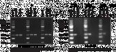 N<sup>6</sup>-Methyl<wbr/>adenosine Polyclonal Antibody