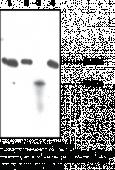 SOAT-<wbr/>2/ACAT-<wbr/>2 Polyclonal Antibody