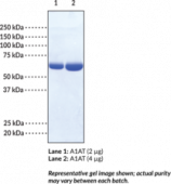 Alpha-1 Antitrypsin