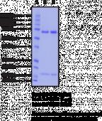 PCSK9 (human recombinant)