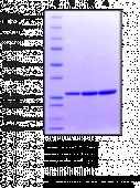 Hsp27 (human recombinant)