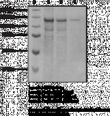 Hormone-<wbr/>Sensitive Lipase (human recombinant)
