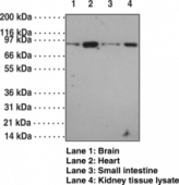 Toll-<wbr/>Like Receptor 12 Polyclonal Antibody