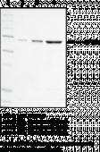 Leukotriene A<sub>4</sub> Hydrolase (human recombinant)