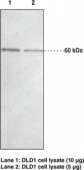 JMJD2D Polyclonal Antibody