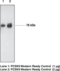 PCSK9 Monoclonal Antibody (Clone 15A6)
