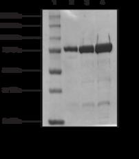 HMG-<wbr/>CoA Reductase (human recombinant)
