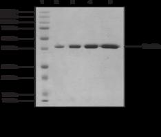 JMJD2D (human, recombinant)