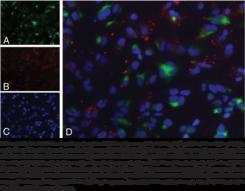 LDL Uptake Cell-<wbr/>Based Assay Kit